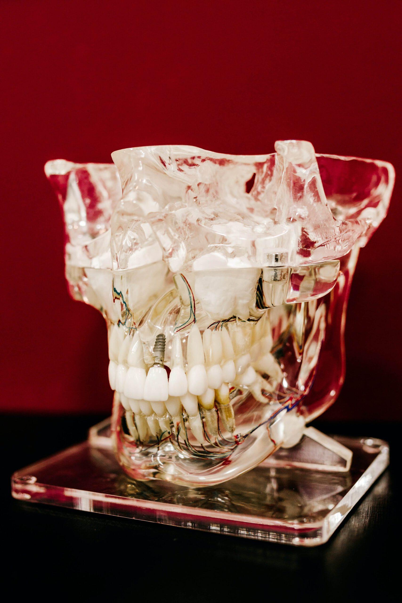 Ile kosztują implanty zębów?